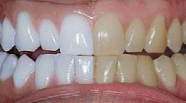 Clareamento Dental Natural Sem Produtos Quimicos